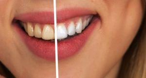 Increíbles tips para blanquear tus dientes en casa