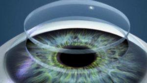bioimpresion-3D-cornea-humana